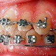 A reader has asked how to remove dental braces in case of emergency. Is there a danger of fracturing a healthy tooth? How can the clasps be removed? What about...