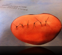 The best suture material I have found that anyone can purchase online is the brand Unify, available through Amazon and elsewhere. For suturing of skin wounds, the 3-0 and 4-0...